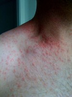 alcohol allergie rode vlekken