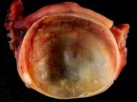 grote cyste eierstok