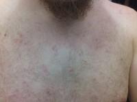 plekjes op borst