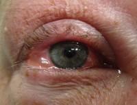 pollen allergie symptomen