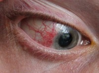 Episcleritis / Bron: Asagan / Wikimedia Commons