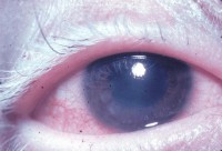 Poliosis van de wimpers (witte wimpers) / Bron: National Eye Institute, Wikimedia Commons (Publiek domein)