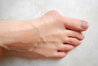 Een bunion / Bron: Lamiot, Wikimedia Commons (CC BY-SA-4.0)