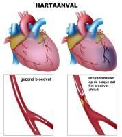 Hartaanval Of Hartinfarct Symptomen Oorzaak En Behandeling Mens