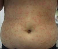 Folliculitis / Bron: James Heilman, MD, Wikimedia Commons (CC BY-SA-3.0)