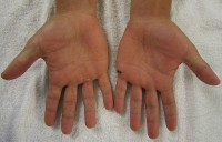 Hand Voet En Mondziekte Symptomen Oorzaak