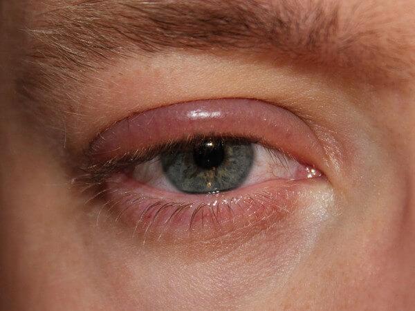 opgezwollen ooglid