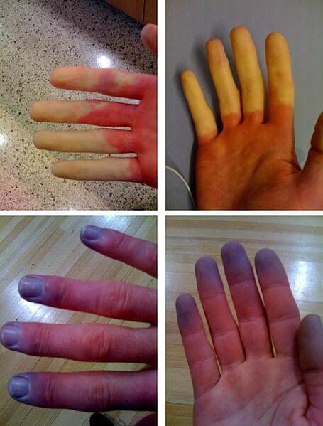 Top Splinterbloeding onder de nagel: oorzaken streep onder nagel  @AR82