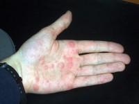 huiduitslag handen