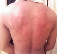 symptomen huidaandoeningen
