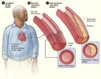 Slagaderverkalking / Bron: National Heart Lung and Blood Insitute (NIH), Wikimedia Commons (Publiek domein)