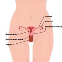 Eileiderontsteking Symptomen Oorzaak En Behandeling Mens En