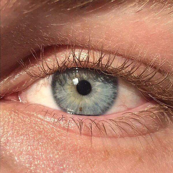 oog eczeem