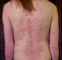 Psoriasis op de rug / Bron: The Wednesday Island / James H, Wikimedia Commons (CC BY-SA-3.0)