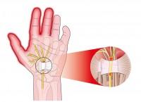 pijnlijke handpalm