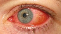 Conjunctivitis / Bron: Marco Mayer, Wikimedia Commons (CC BY-SA-4.0)
