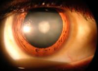 Cataract / Bron: Rakesh Ahuja, MD, Wikimedia Commons (CC BY-SA-3.0)