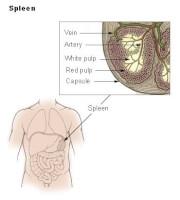 symptomen alvleesklier aandoeningen