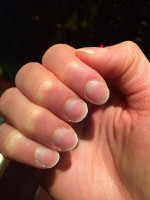 Half and half nails of Lindsay's nails / Bron: Nickyay, Wikimedia Commons (CC BY-SA-4.0)