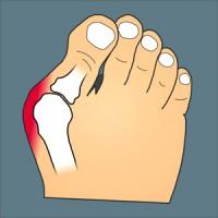 onderkant voet doet pijn