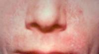 rode huid rond neus