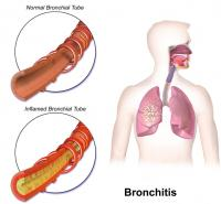 Bronchitis / Bron: BruceBlaus, Wikimedia Commons (CC BY-SA-4.0)