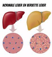 vervette lever behandeling