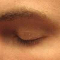 trillend ooglid tumor