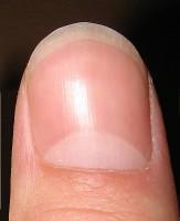 harde nagels krijgen
