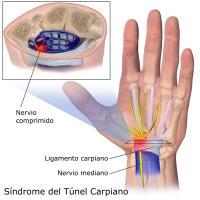 pijn in linkerarm en tintelingen