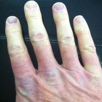 Blauwe Nagels Of Blauwe Nagel Oorzaken En Wat Te Doen Mens En Gezondheid Aandoeningen
