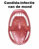 schimmel keel symptomen