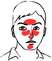 rode neus oorzaak