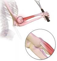 Pijn Aan Elleboog Symptomen Oorzaak En Behandeling Mens En