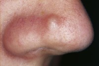 Fibrous papule of the nose / Bron: M. Sand et al., Wikimedia Commons (CC BY-2.0)