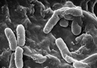 Pseudomonas aeruginosa / Bron: Photo Credit: Janice Haney Carr Content Providers(s): CDC Janice Haney Carr, Wikimedia Commons (Publiek domein)