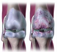 Pijn In Knieholte Oorzaken Van Pijn Aan Achterkant Van Knie
