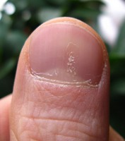 Milde nagelpsoriasis / Bron: Seenms, Wikimedia Commons (CC BY-SA-3.0)