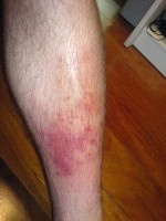 Cellulitis op het been / Bron: RafaelLopez, Wikimedia Commons (CC BY-SA-3.0)