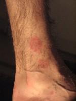 huiduitslag rode vlekken op benen