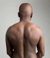 Pijn Tussen Schouderbladen Symptomen Oorzaak Behandeling