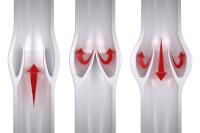 Oedeem symptomen oorzaken en behandeling vochtophoping for Behandeling oedeem