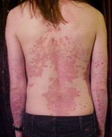 psoriasis op rug en armen. / Bron: The Wednesday Island, Wikimedia Commons (CC BY-SA-3.0)